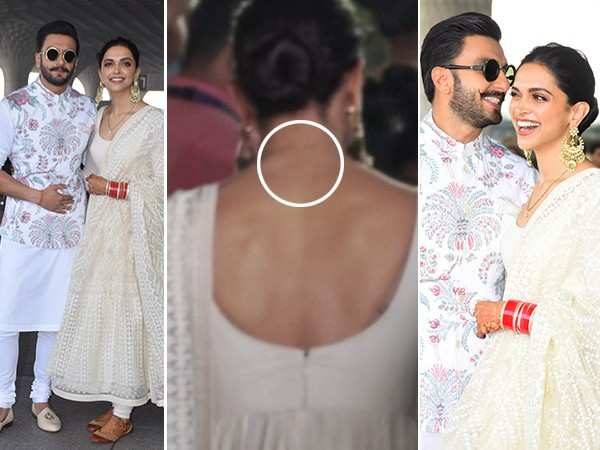 Deepika Padukone gets her RK tattoo removed post marriage ...
