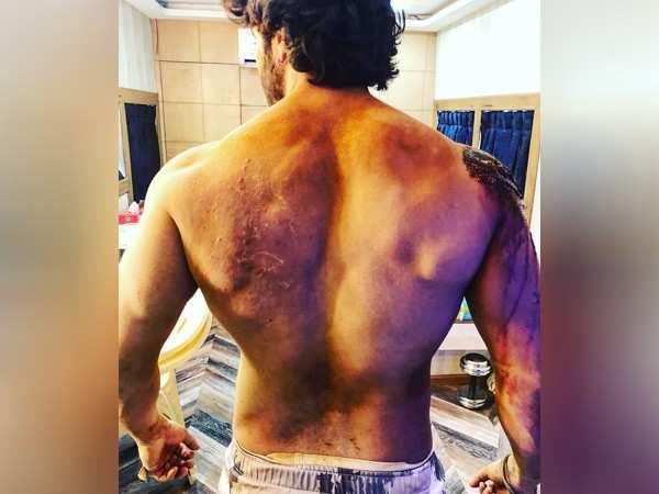 Kalank: Proof that Varun Dhawan has won the battle of scars