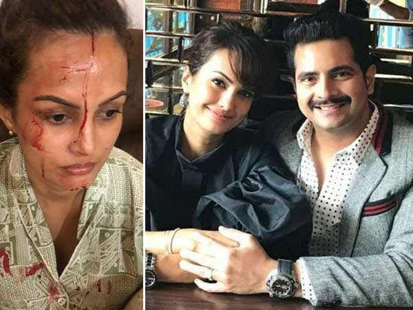 Designer Rohit Verma shares shocking proof of Nisha Rawal's assault by Karan Mehra
